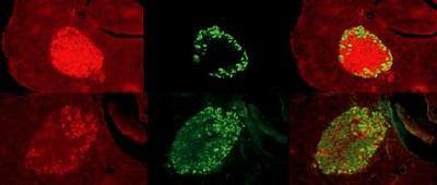 Einfluss von Melatonin auf die Insulinsekretion pankreatischer Inseln